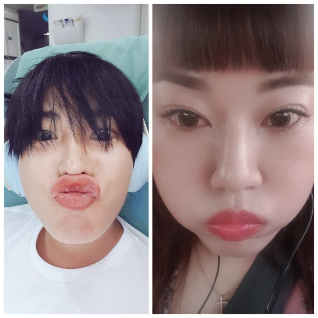 Top 18+ LOL Funny Face