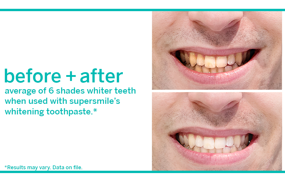Supersmile Toothpaste Reviews